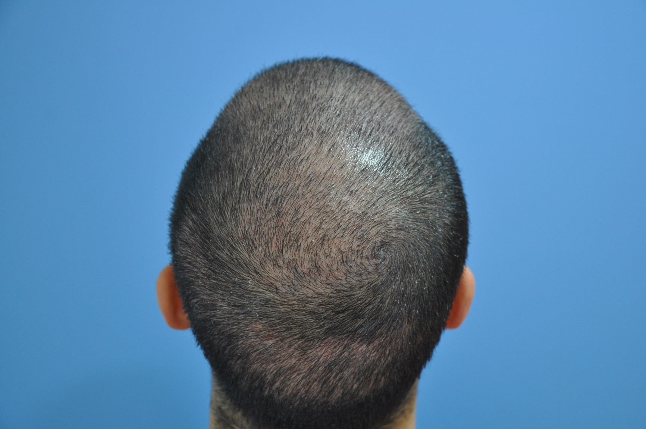 Hair Transplantation Center